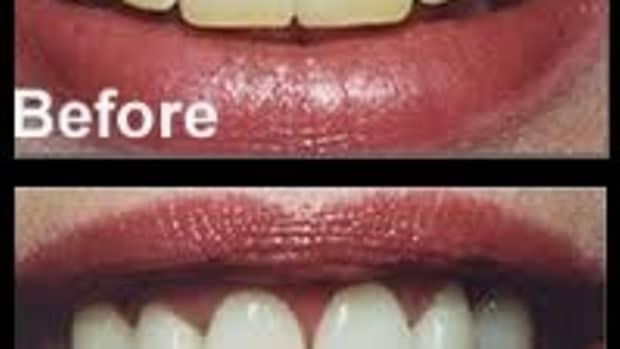 homemade-teeth-whitening