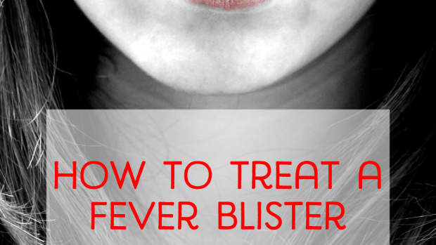 getting-rid-of-cold-sores