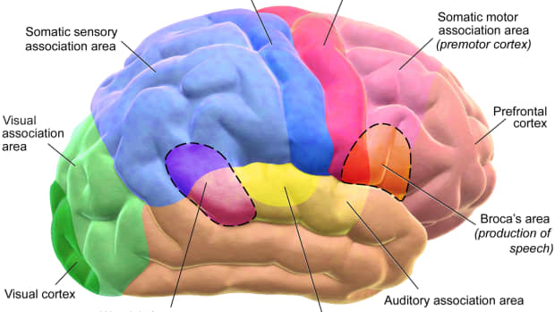 cognitive-neuropsychology-broca-wernicke