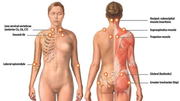 how-to-deal-with-people-who-dont-believe-in-fibromyalgia