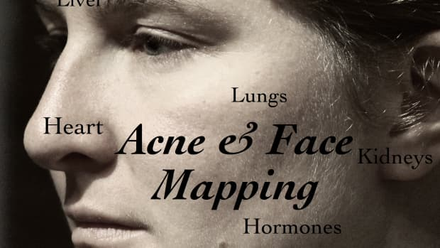 face-mapping-whats-your-acne-telling-you