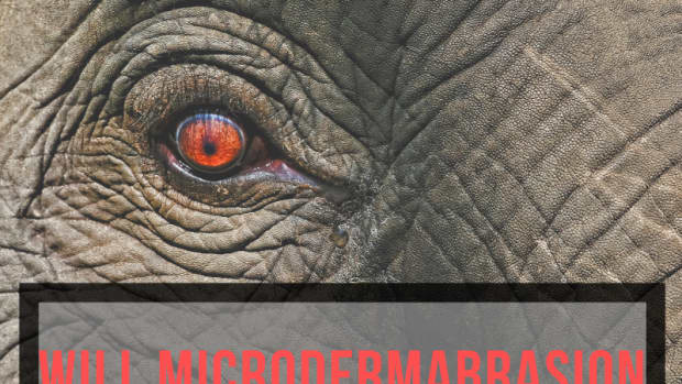 microdermabrasion-will-it-remove-your-wrinkles