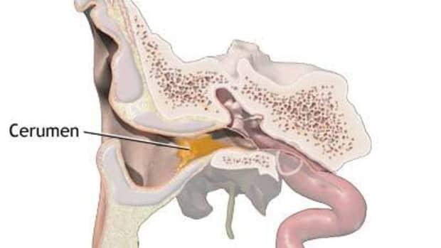 removing-ear-wax