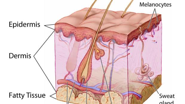 retin-a-stretch-marks