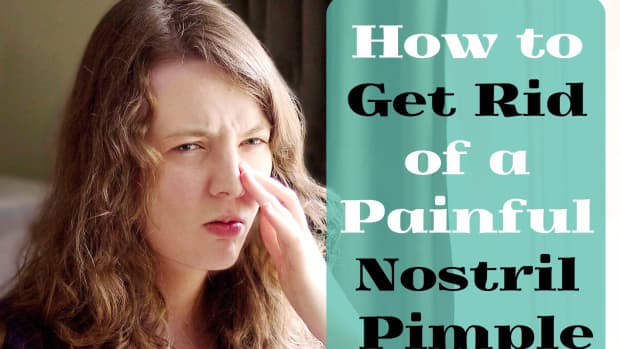 pimple-in-nose-try-this-easy-method-for-rapid-relief