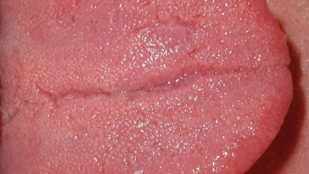 swollen-tongue-a-painful-and-possibly-dangerous-health-disorder