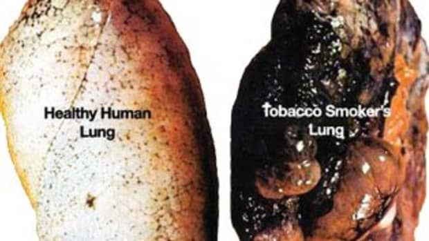 long-term-negative-side-effects-of-quitting-tobacco-they-will-not-tell-you-about