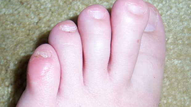 how-to-care-for-a-foot-blister