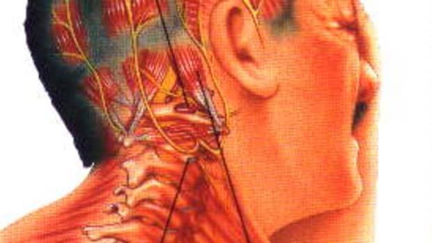 cervicogenic-headaches