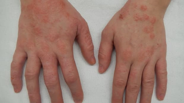 the-best-way-to-heal-eczema-a-personal-experience