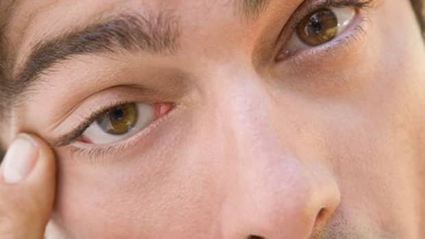 why-is-my-eye-twitching-its-from-something-called-blepharospasm