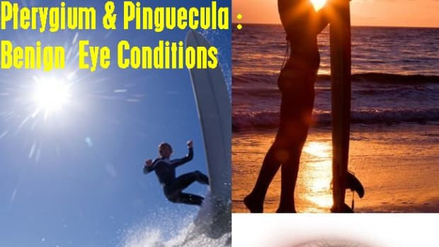 surfers-eye-pterygium-and-pinguecula