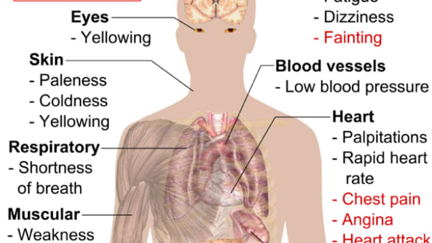 signs-and-symptoms-of-anemia