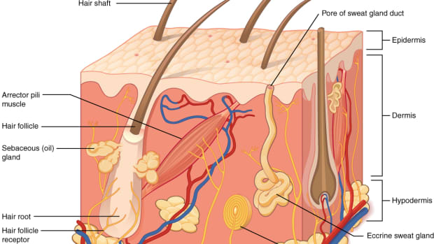 psoriasis-obesity-and-heart-disease