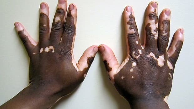 vitiligo-a-skin-disorder-with-loss-of-pigmentation