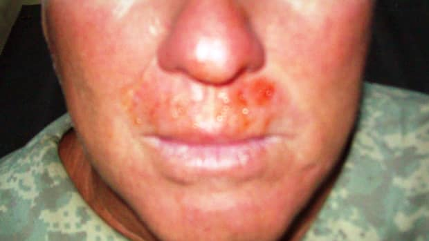 what-are-the-causes-of-frequent-bloody-noses
