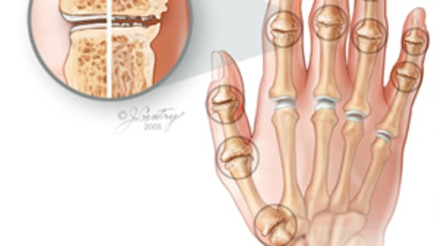 massage-therapy-and-osteoarthritis-pain