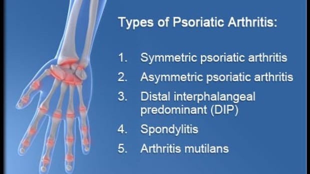 psoriatic-arthritis-arthritis-symptoms-and-arthritis-treatment