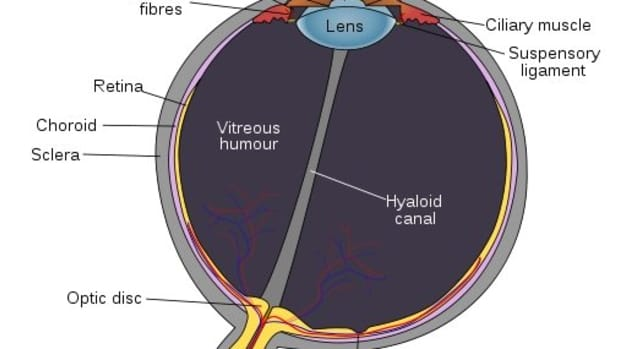 eyes-and-cataracts