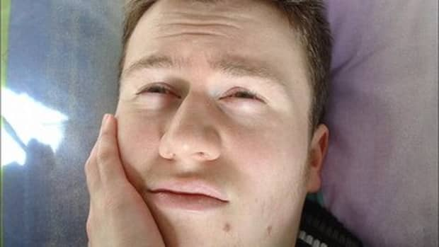 how-to-stop-wisdom-tooth-pain