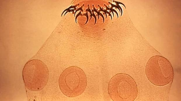 parasites-that-can-infect-the-brain-toxoplasma-and-a-tapeworm
