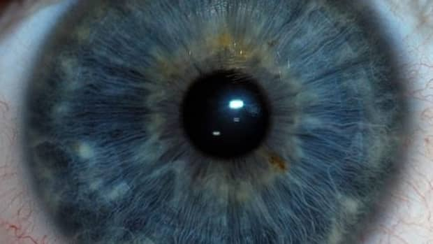 definition-of-dilation