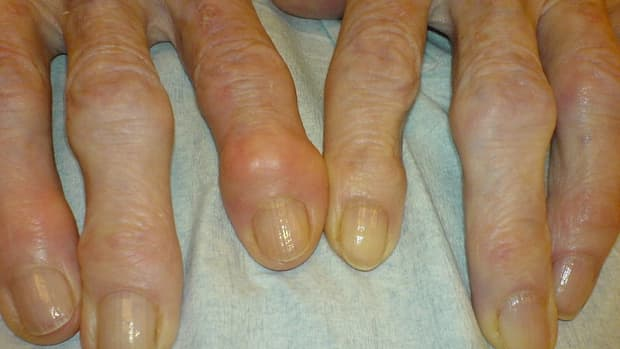 how-to-decrease-your-chances-of-getting-arthritis