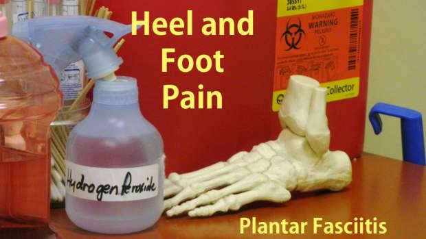 treatment-for-plantar-fasciitis-foot-pain