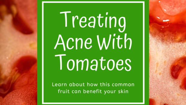how-to-treat-acne-tomatoes