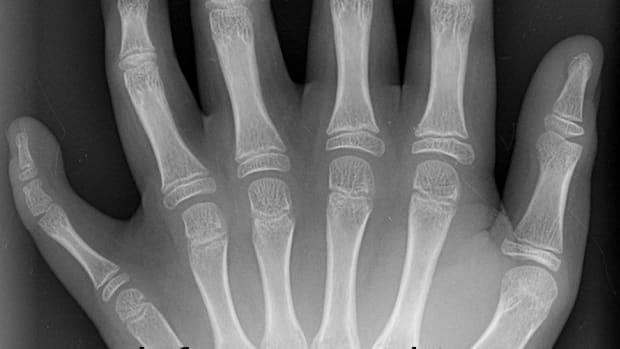 x-ray-technician-aka-radiology-technician