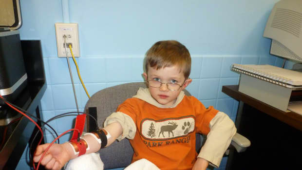 sweat-test-for-cystic-fibrosis