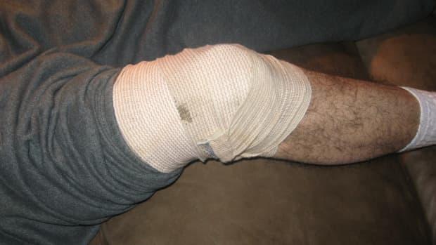 torn-meniscus-my-experience