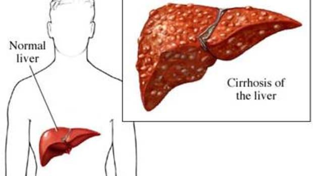 autoimmune-hepatitis-causes-cirrhosis-of-the-liver
