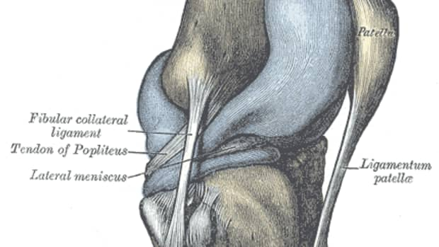 knee-replacement-surgery-what-to-expect