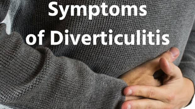 diverticulitis-signs-and-symptoms-from-my-experience