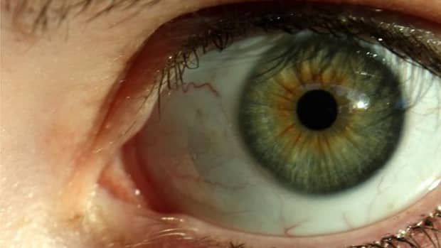 dark-rings-around-the-iris