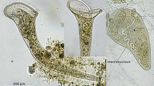 stentor-a-trumpet-shaped-organism-with-interesting-behaviour