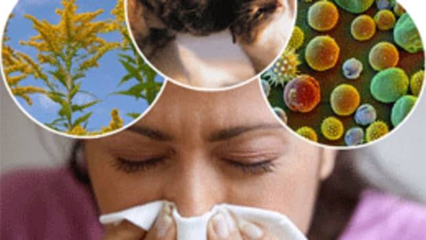 best-herbal-remedies-for-allergies