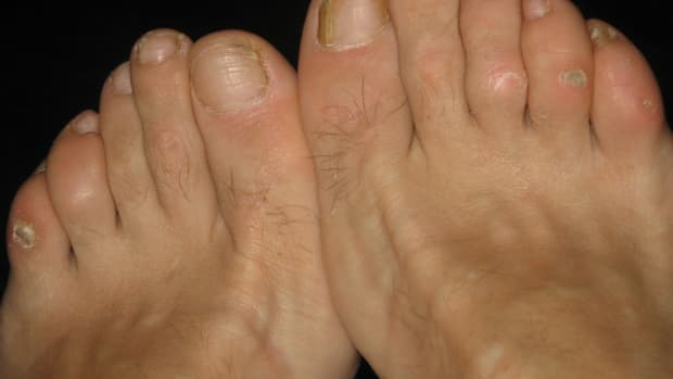 how-to-get-rid-of-corns-from-feet-fast-and-naturally-home-remedies