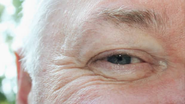 dry-skin-around-eyes-what-you-can-do-about-it