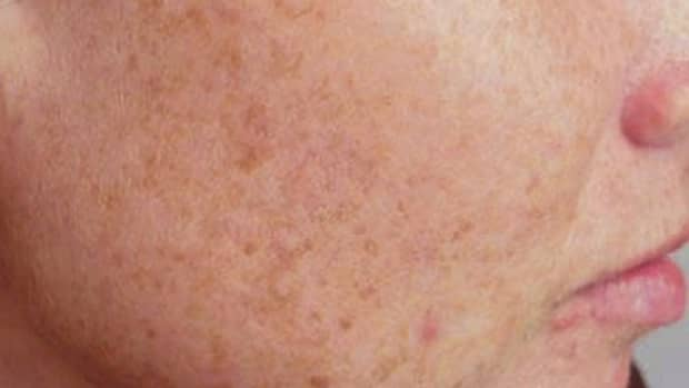 liver-spots-pictures-causes-treatment-removal