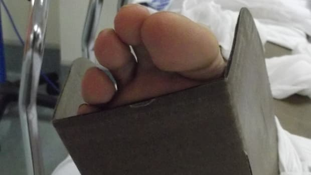 sprained-ankle-vs-broken-ankle