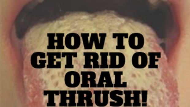 treat-oral-thrush-with-pau-d-arco-herb