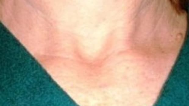 thyroid-cancer-information