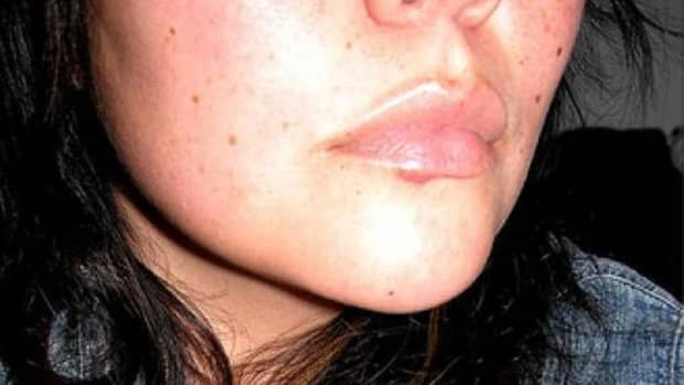 how-to-beat-a-cold-sore