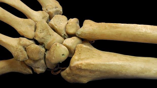 broken-wrists