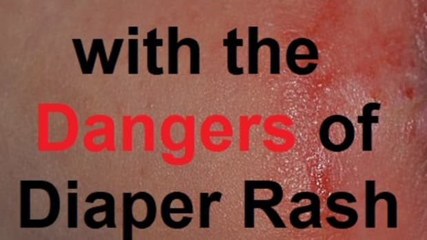 how-to-deal-with-the-dangers-of-diaper-rash