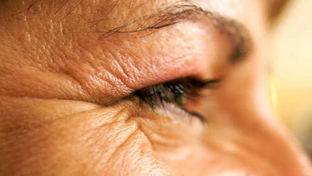 glycerin_anti-aging_moisturizer_restores_elasticity_to_eye_area