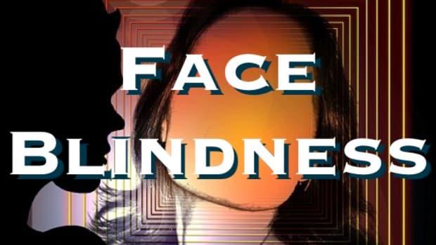 prosopagnosia-face-blindness