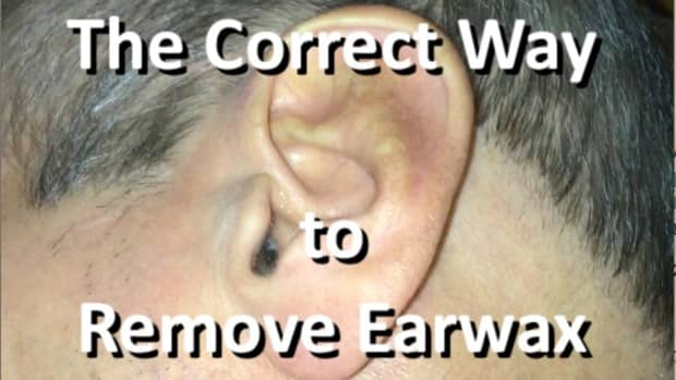 removing-impacted-earwax